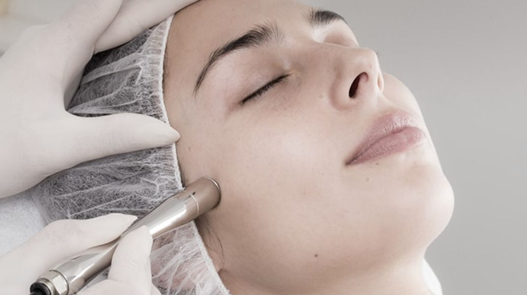 15 impressive facts about Microdermabrasion