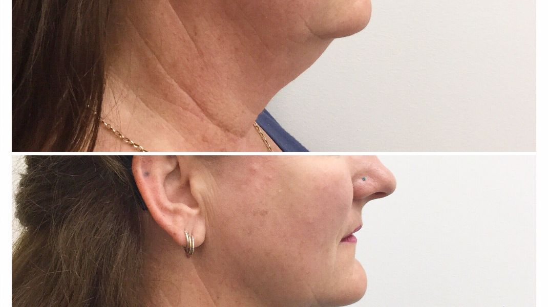 Chin Sculpting: Before & After
