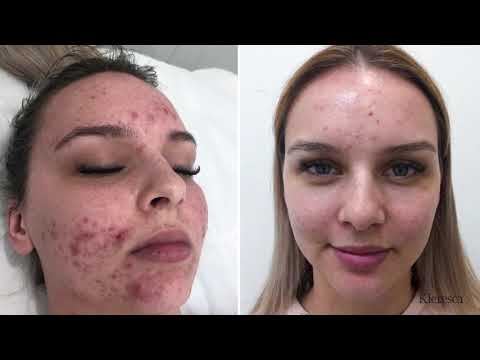 Kleresca® Acne - the revolutionary skin treatment for acne and acne scarring