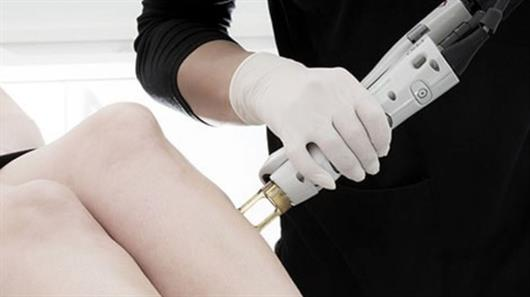 Popular laser hair removal treatments for men and women