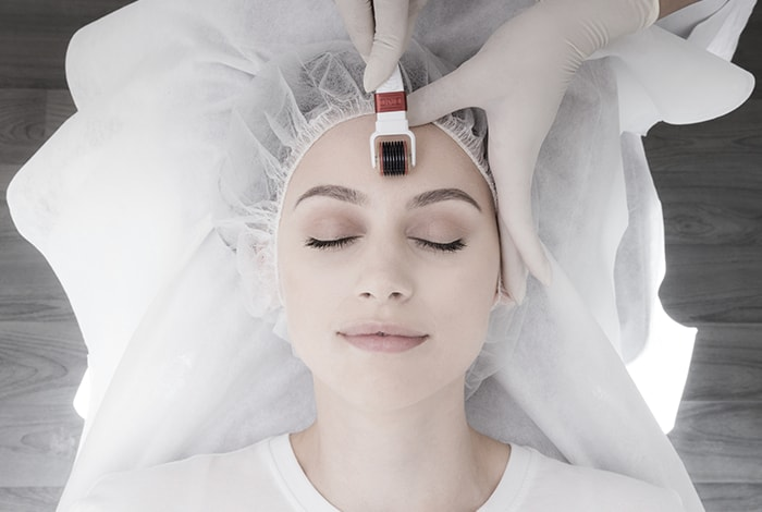 Skin Needling: how to prepare for the treatment (and prices)