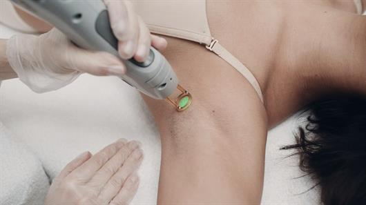 The science (and process) behind laser hair removal
