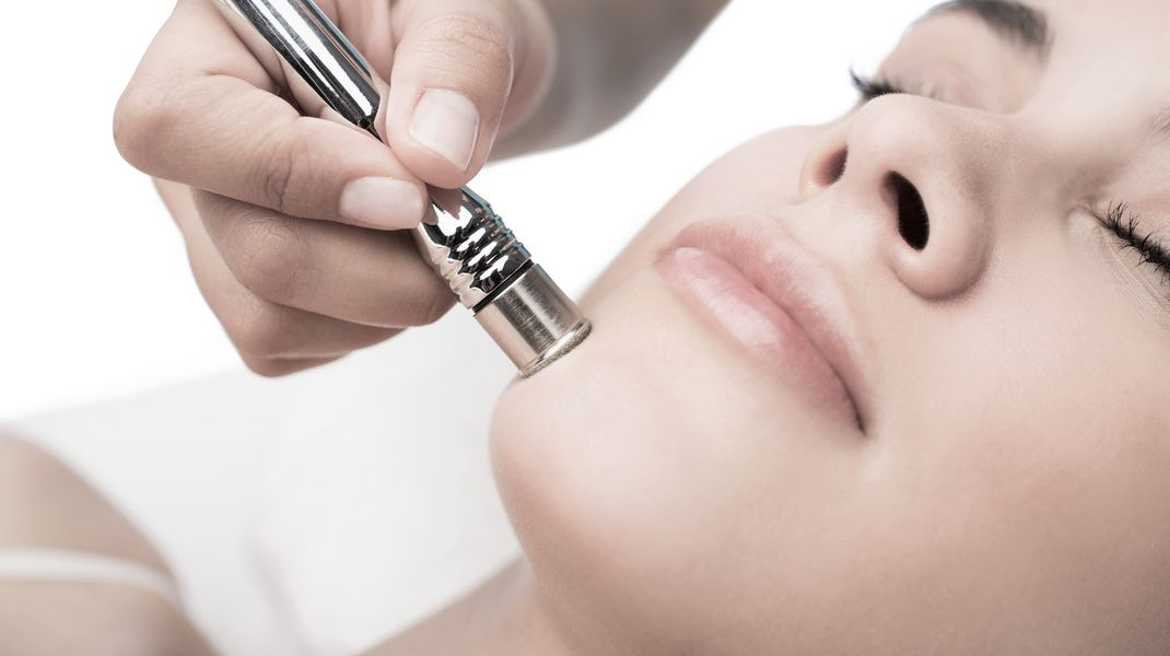 The skin concerns that will benefit from a Microdermabrasion