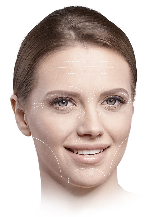 Wrinkle Treatment Areas