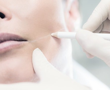 Laser Clinics Australia | Trusted Laser, Skin Care