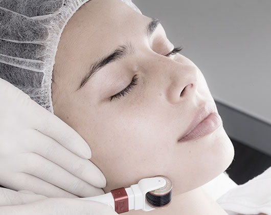 Pigmentation Reduction and Removal | Clinics Australia