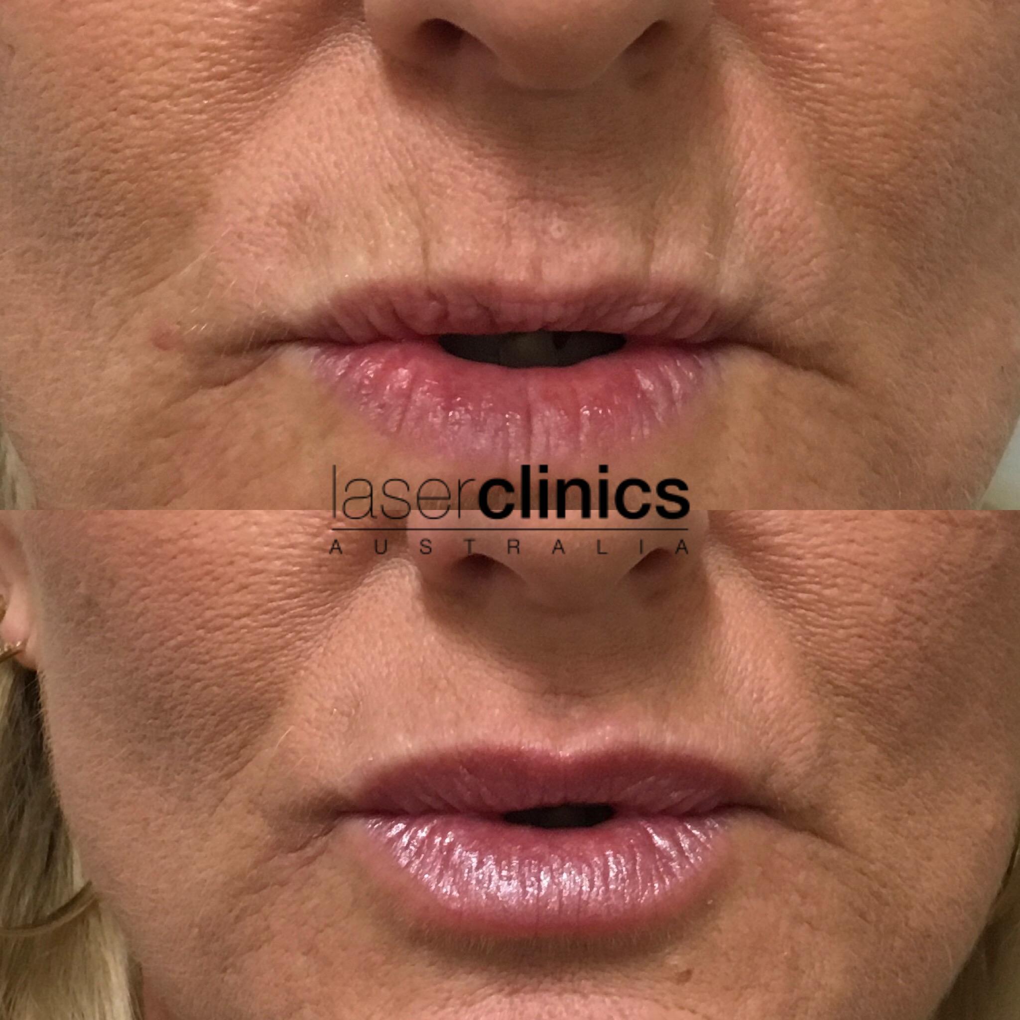 Helensvale Westfield   Laser Clinics Australia