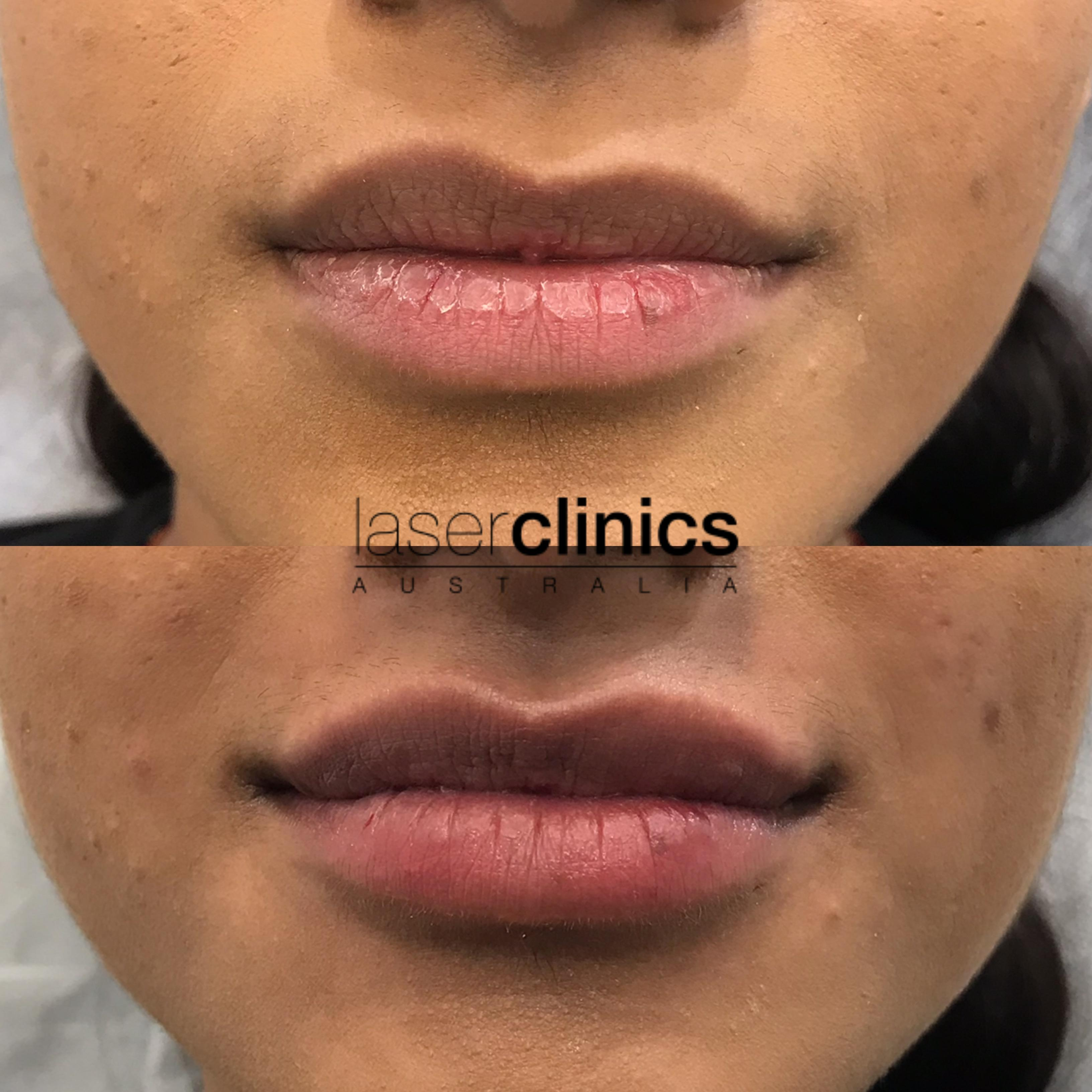 Cosmetic Injectables - Before and After | Laser Clinics