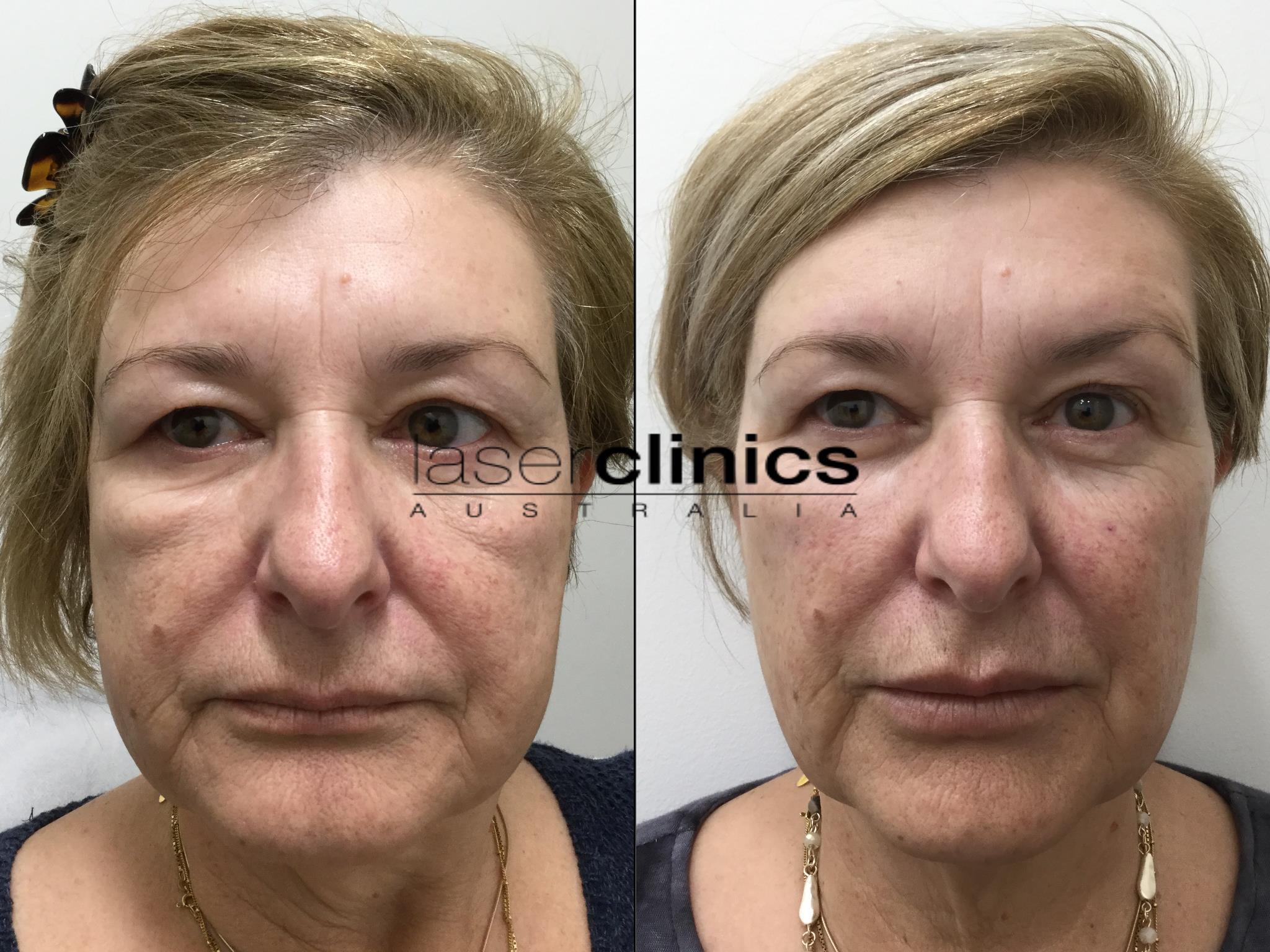 Noosa | Laser Clinics Australia