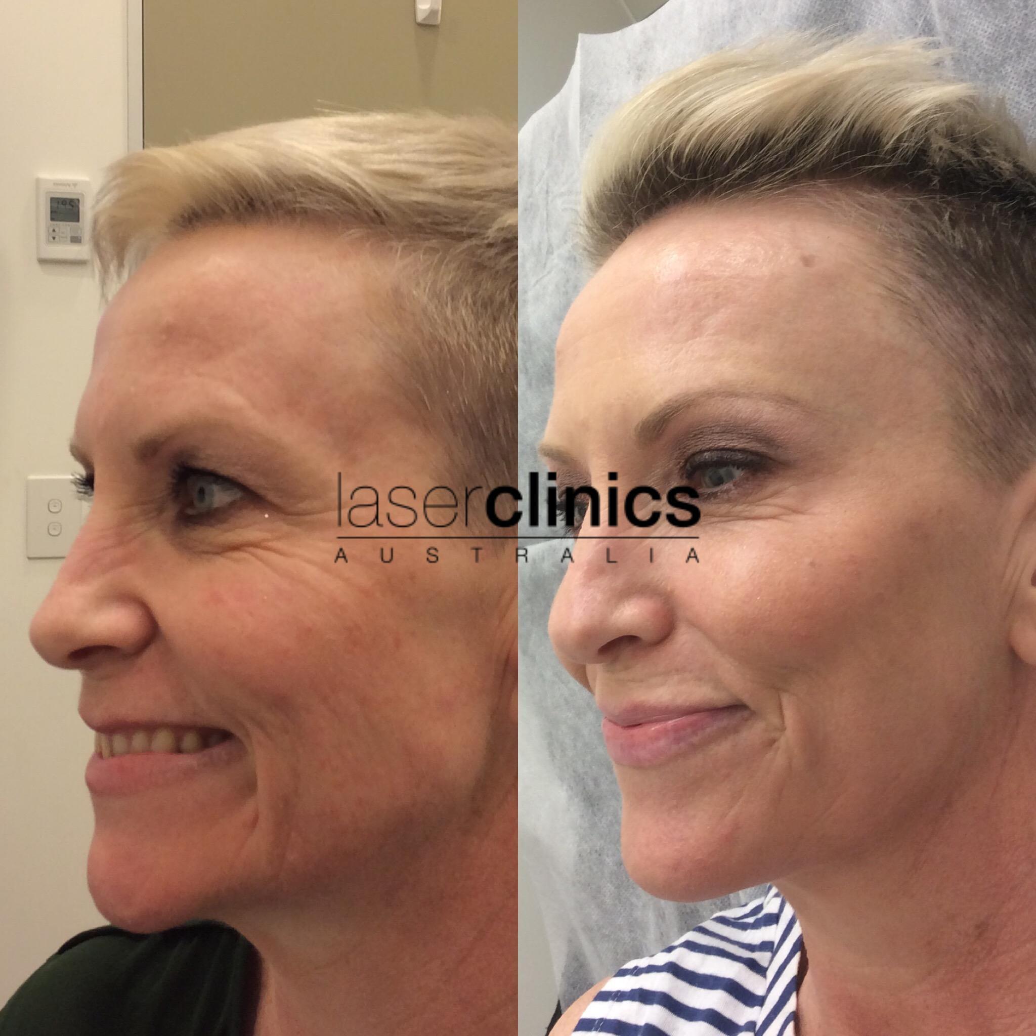 Queens Plaza | Laser Clinics Australia