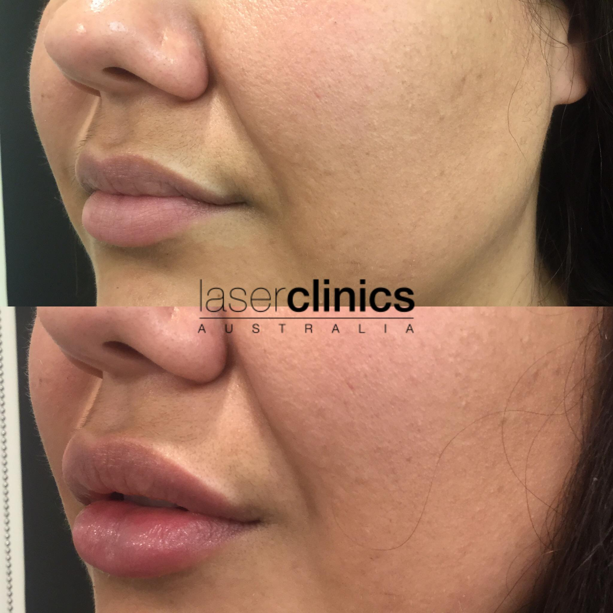 Cosmetic Injectables - Before and After   Laser Clinics