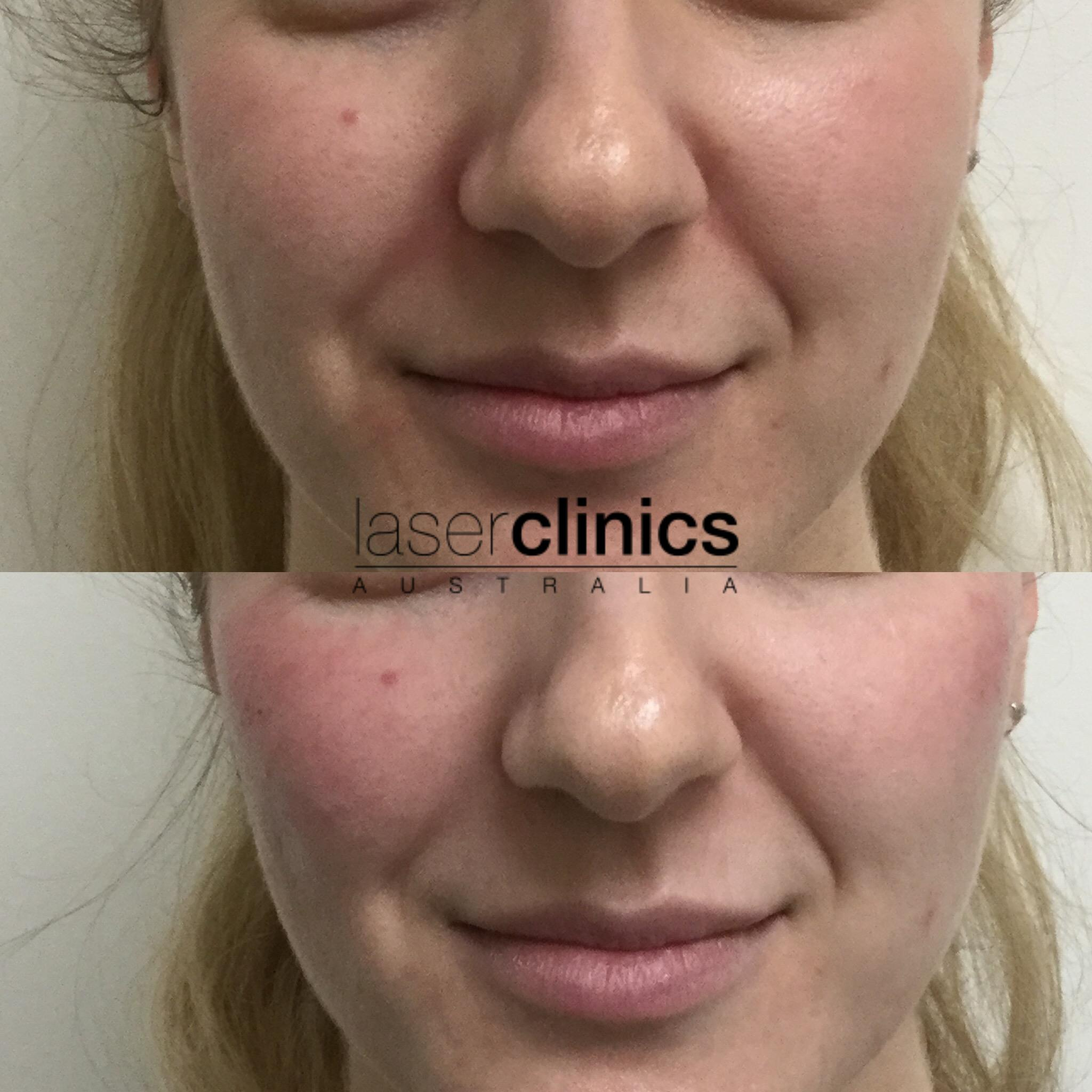 Epping | Laser Clinics Australia